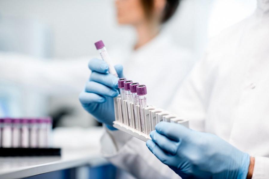 На Кубани за сутки выявили 59 новых случаев коронавируса